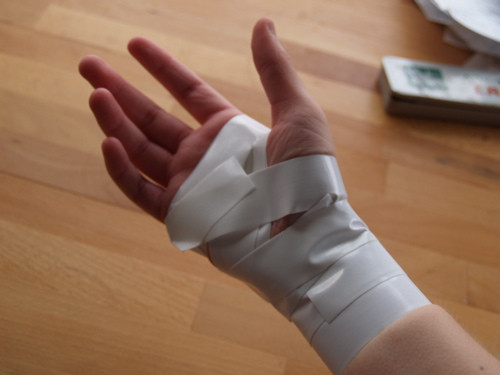 Tendonitis Workers Compensation Injuries