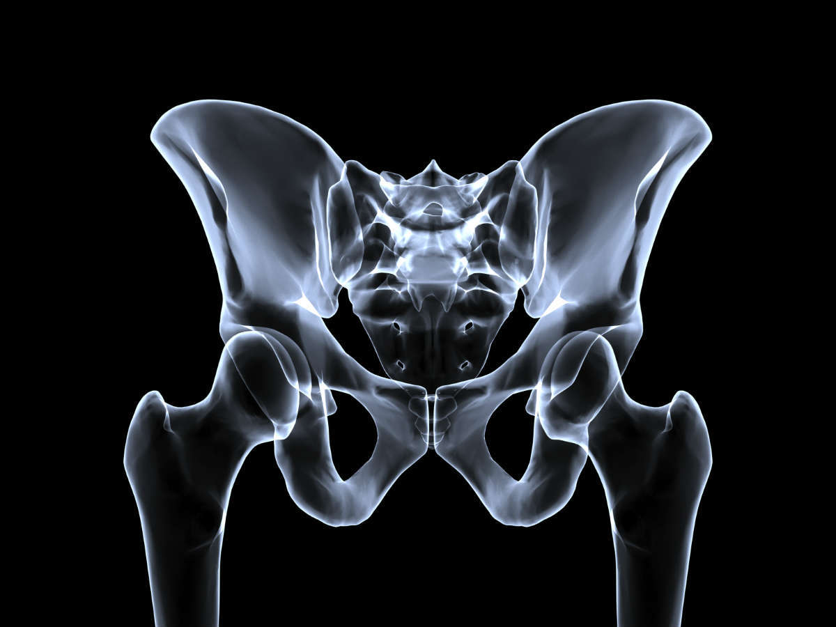 pelvic fracture lawyer