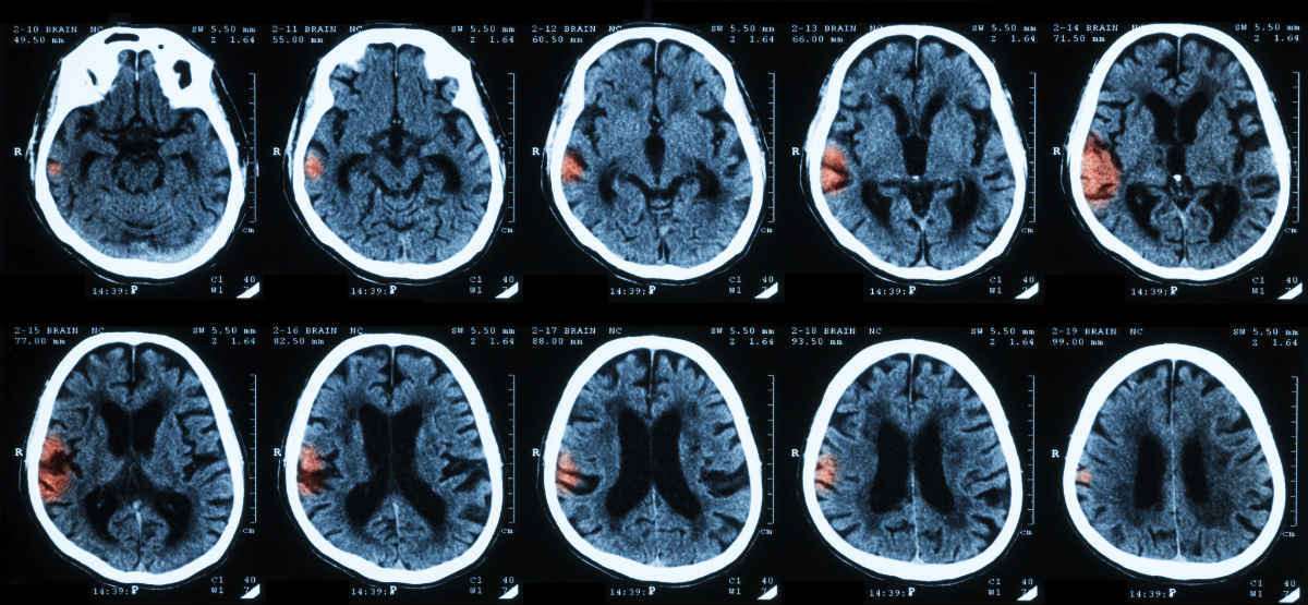 workers comp attorney Intracranial Injury