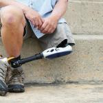 St. Louis Workers Compensation Benefits for Work-Related Amputations